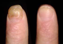 Исцеление ногтя